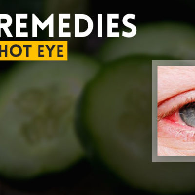 Home Remedies for Bloodshot Eye