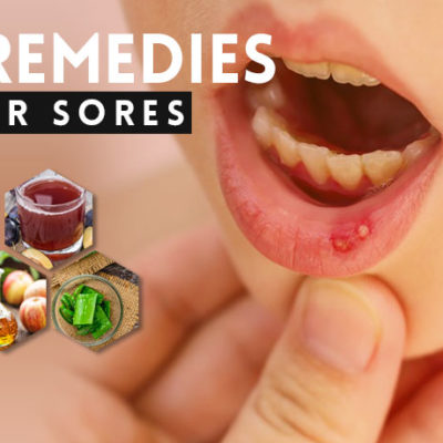 Home Remedies for Canker Sores
