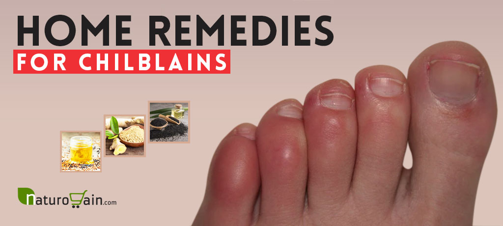 Home Remedies for Chilblains