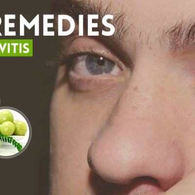 Best Home Remedies for Conjunctivitis