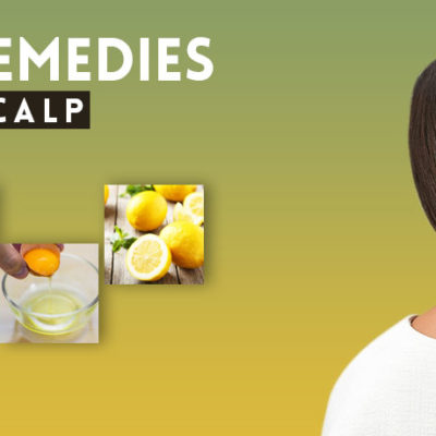 Natural Cures For Dry Flaking Scalp
