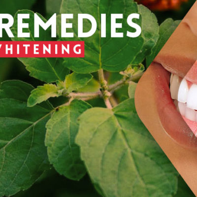 Best Home Remedies for Teeth Whitening