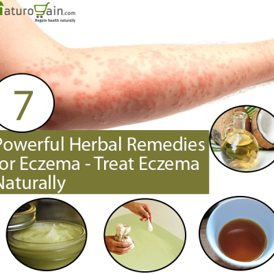Herbal Remedies for Eczema