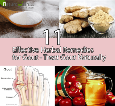 Herbal Remedies for Gout