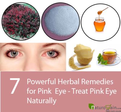 Herbal Remedies for Pink Eye