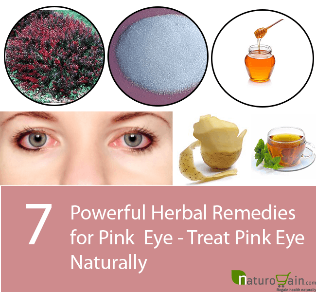Herbal Remedies for Pink Eye