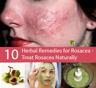 Herbal Remedies for Rosacea