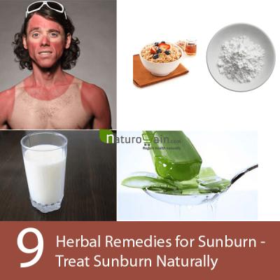 Herbal Remedies for Sunburn