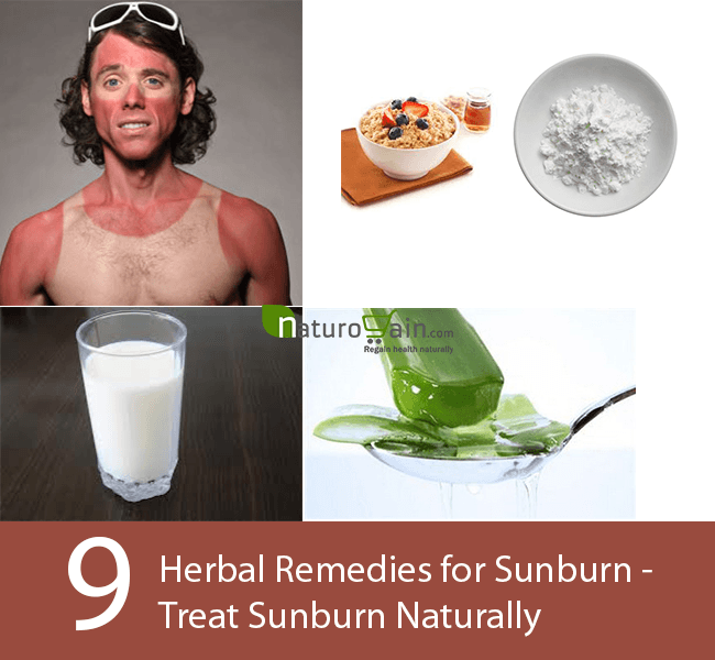 Herbal Remedies for Sunburn