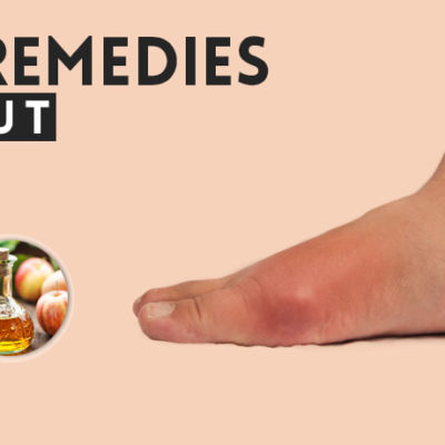 can you have gout in your hips home remedies symptoms of gout gouty arthritis why is my uric acid level low