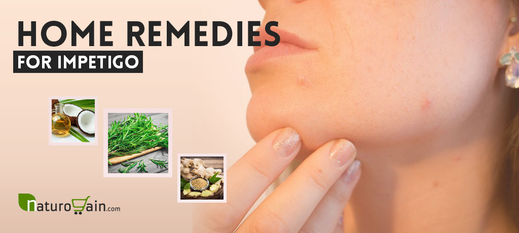Home Remedies for Impetigo