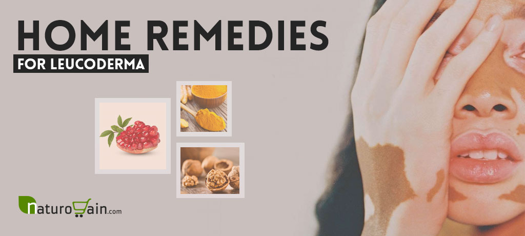 Home Remedies for Leucoderma