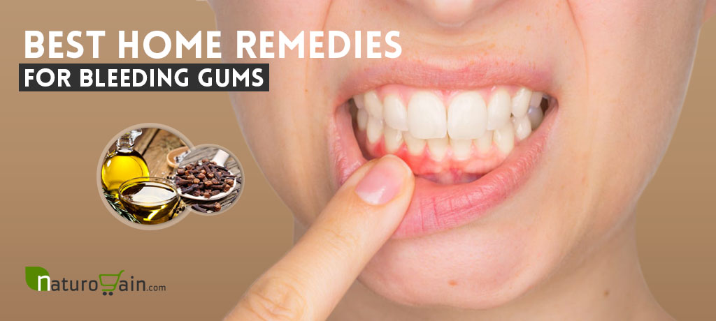 Home Remedies for Bleeding Gums