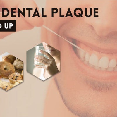 Control Dental Plaque And Tartar Buildup