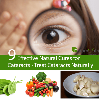 Natural Cures for Cataracts