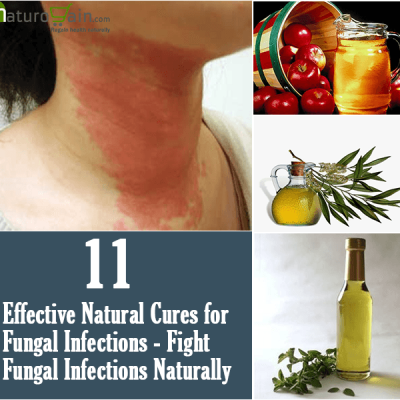 Natural Cures for Fungal Infections