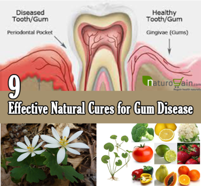 Natural Cures for Gum Disease