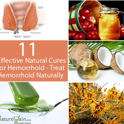 Natural Cures for Hemorrhoid