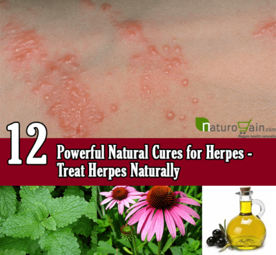 Natural Cures for Herpes