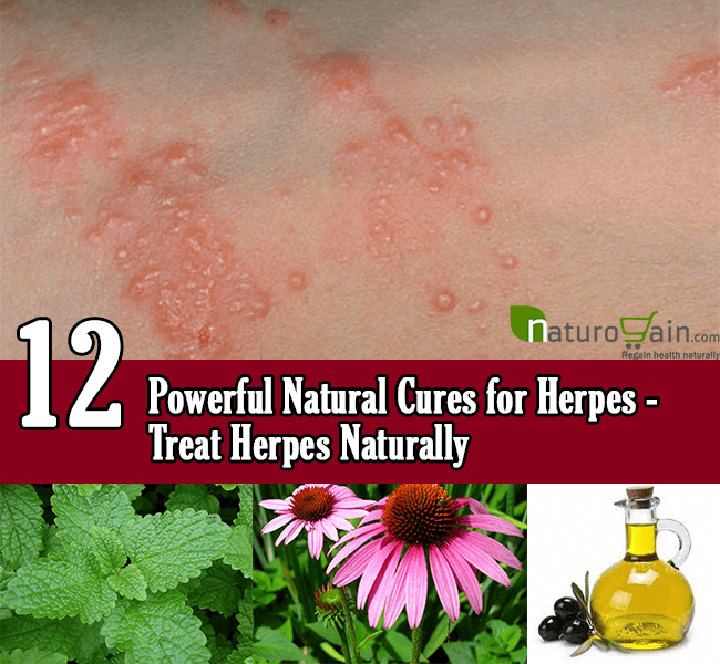 Dr OZ Natural Treatment For Herpes Blisters