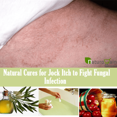 Best Natural Cures For Jock Itch