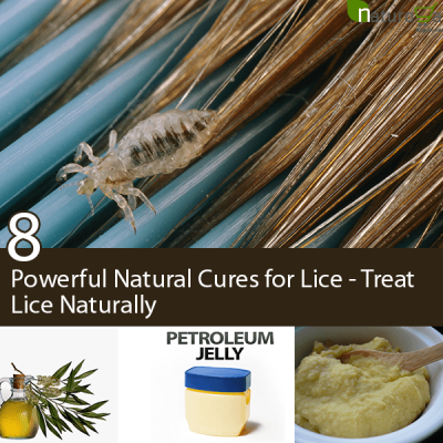Natural Cures for Lice
