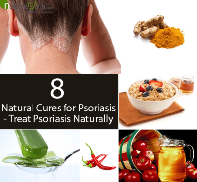 Natural Cures for Psoriasis