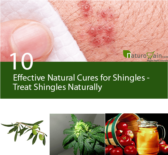 Natural Cures for Shingles