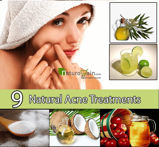 Natural Acne Treatment