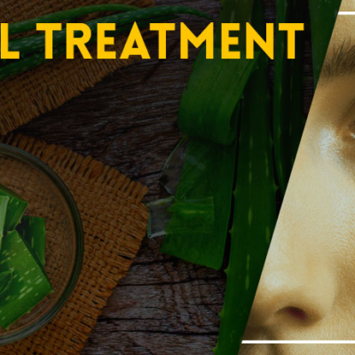 Natural Treatment for Boils