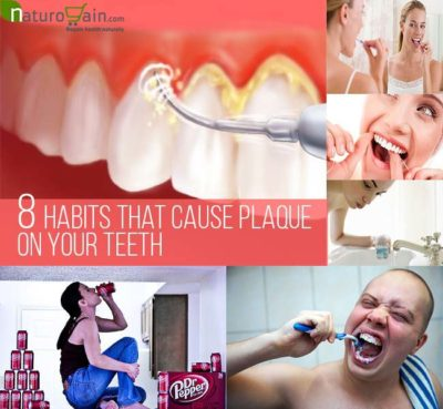 Habits That Cause Plaque on Your Teeth
