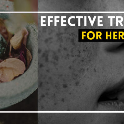 Natural Treatment for Herpes