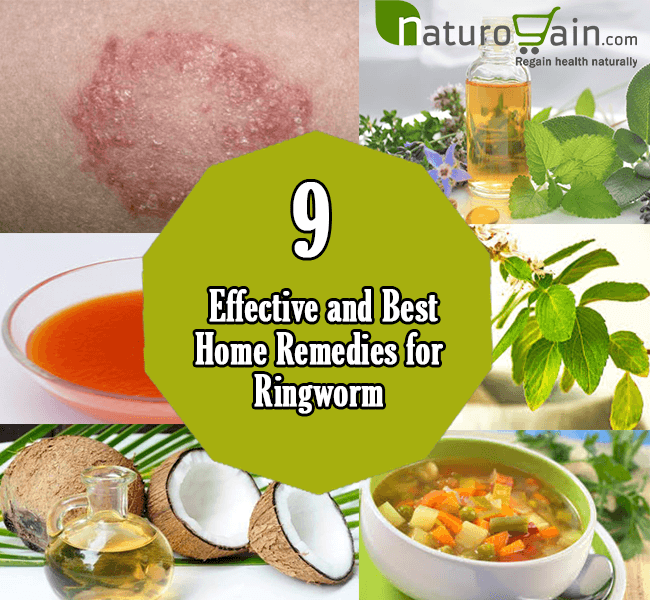 9 best home remedies for ringworm to prevent infection