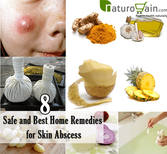 Home Remedies for Skin Abscess