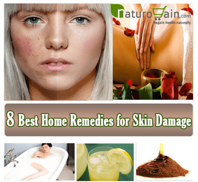 Home Remedies for Skin Damage