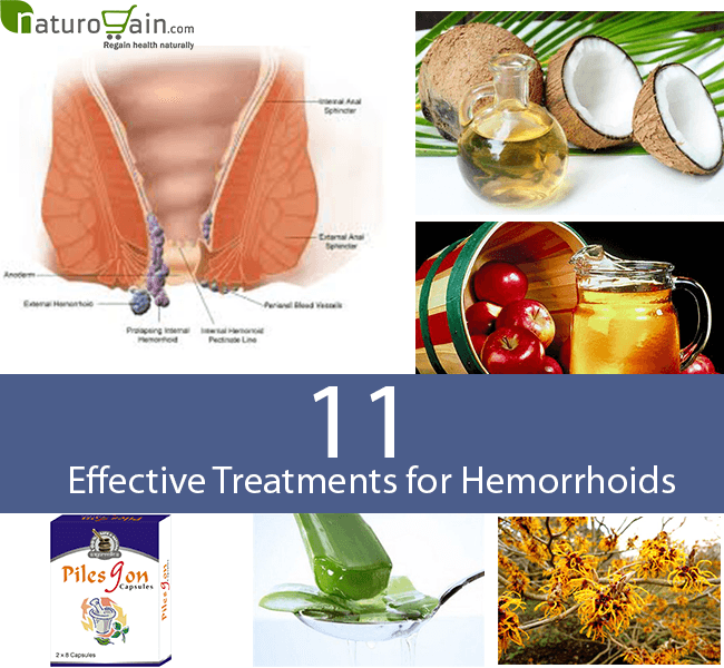 Natural Treatment for Hemorrhoids