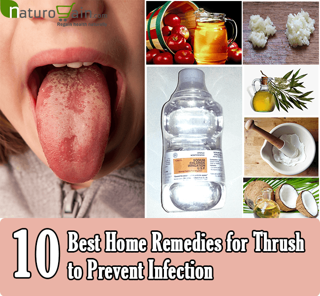 How to treat yeast infection quickly with natural cure for yeast infection