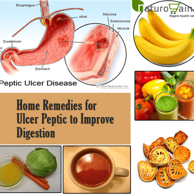 Home Remedies for Ulcer Peptic