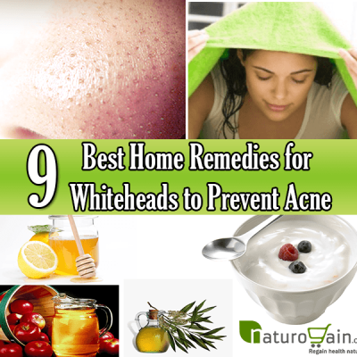 home-remedies-for-whiteheads