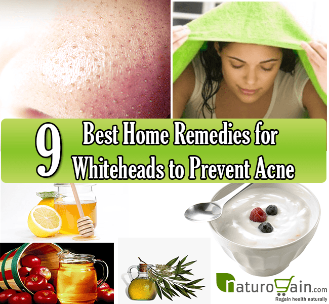 9 best home remedies for whiteheads to prevent acne