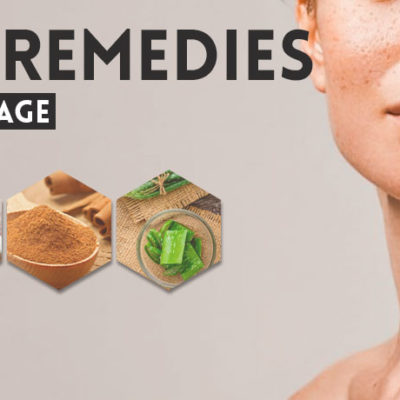 home-remedies-for-skin-damage