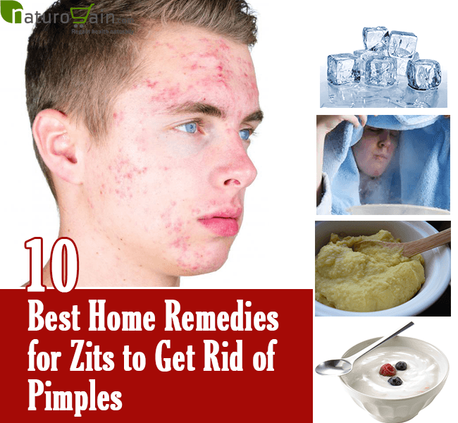 home-remedies-for-zits