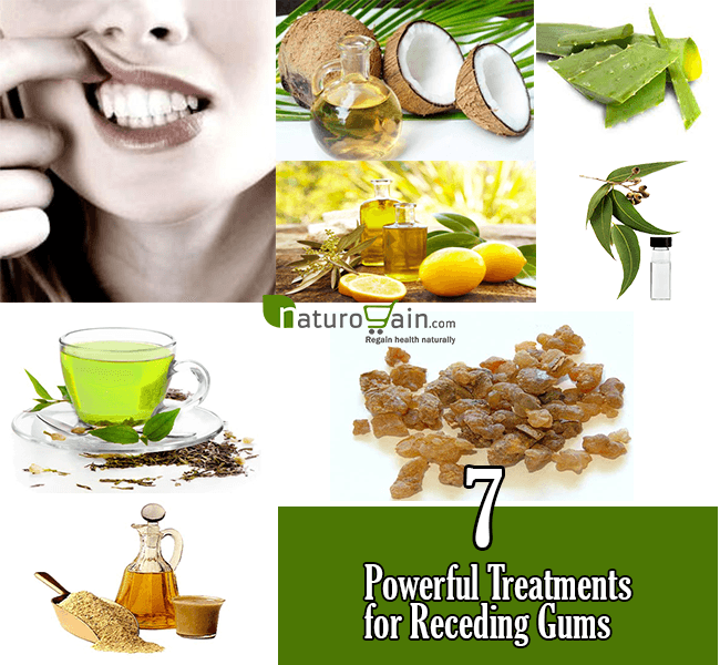 Natural Treatments for Receding Gums