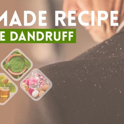 Homemade Recipe to Remove Dandruff