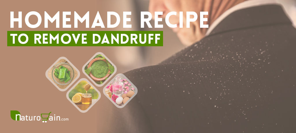 Homemade Recipe to Remove Dandruff