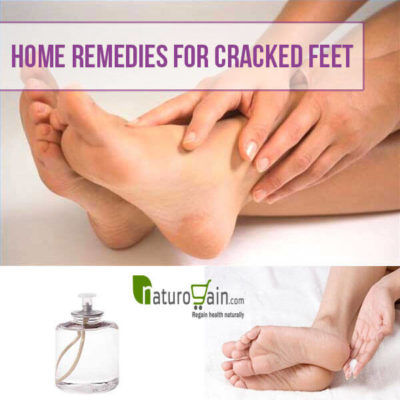 home-remediers-for-cracked-feet