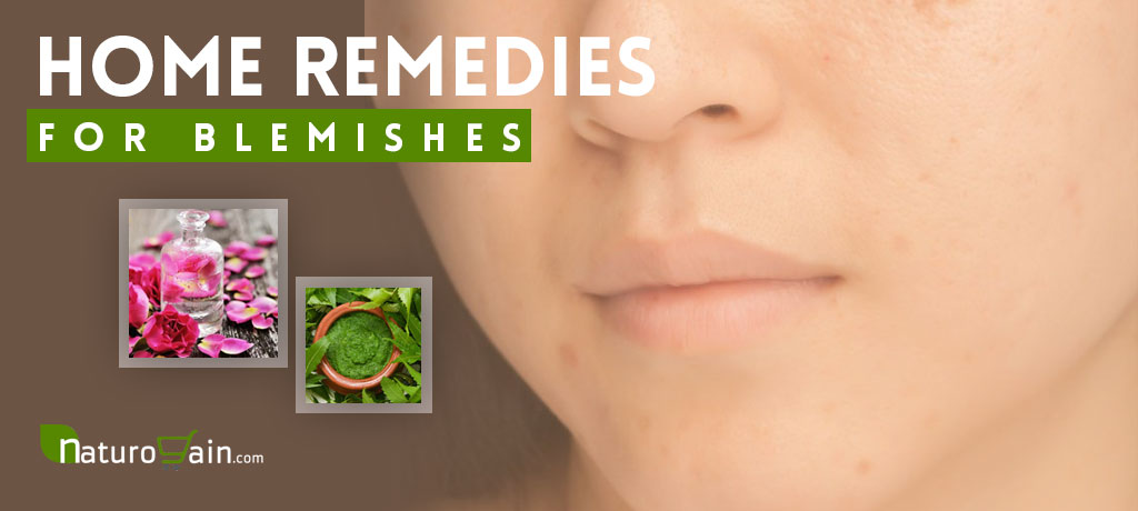 home-remedies-for-blemishes