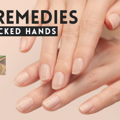 home-remedies-for-dry-cracked-hands