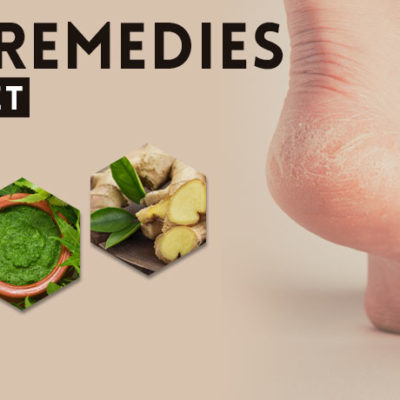 home-remedies-to-heal-cracked-feet