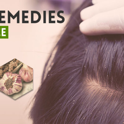 home-remedies-for-hair-lice